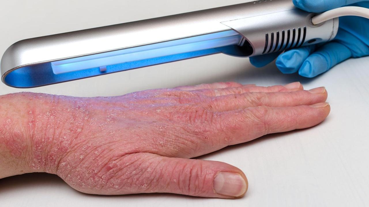 Cilt Yanıkları İçin Yeni Tedavi Yöntemi Geliyor! Işık Tedavisi Nedir